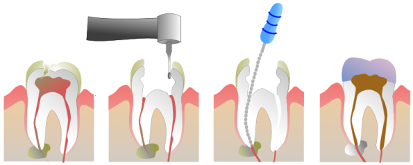 Root Canal in Lewisville